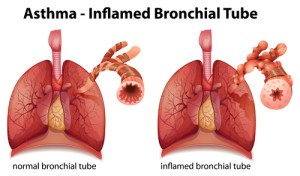 an overview on asthma