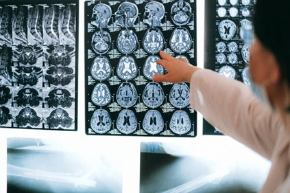 A neurosurgeon studying a brain X-ray